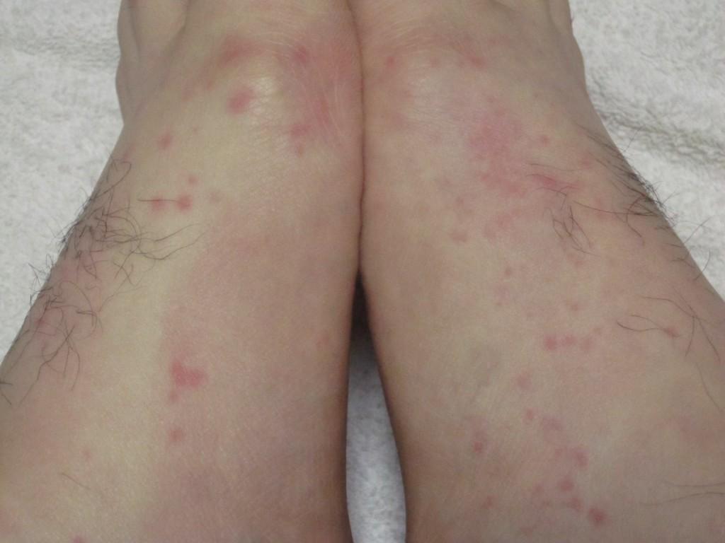 足に出てきた赤い発疹・蕁麻疹
