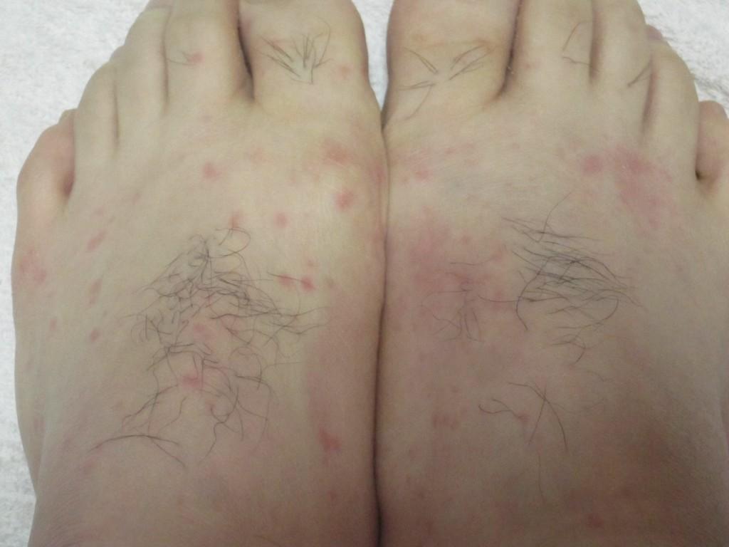 痛々しい足の甲に赤い斑点のコリン性蕁麻疹が出た