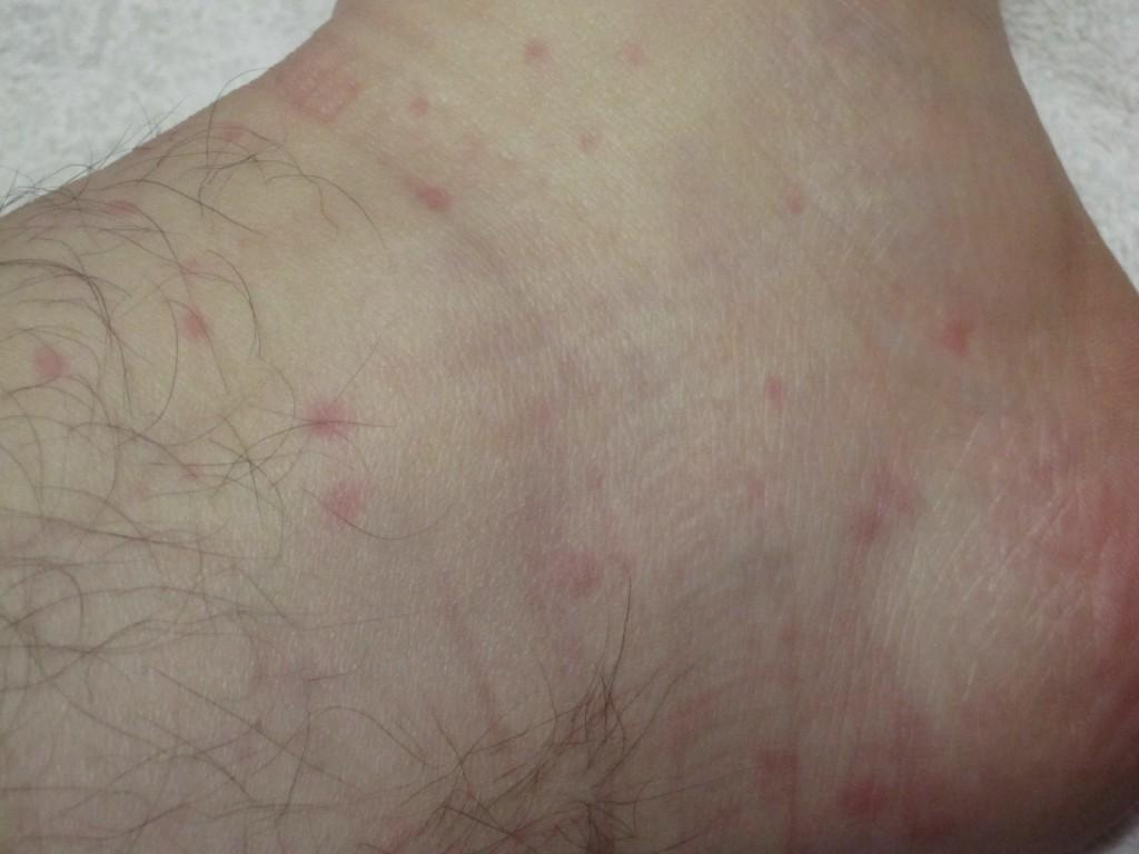 「足首・くるぶし」まで蕁麻疹が出ている