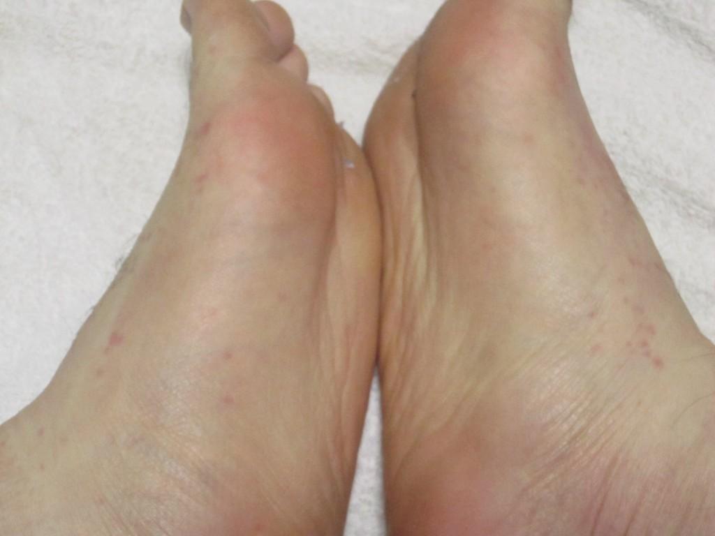足の裏にも少しだけ蕁麻疹が確認できる