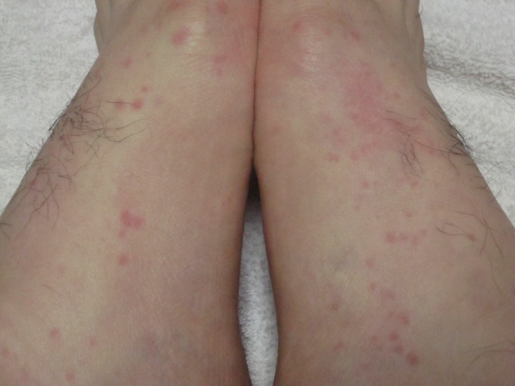 見てるだけで痒くなりそうなコリン性蕁麻疹