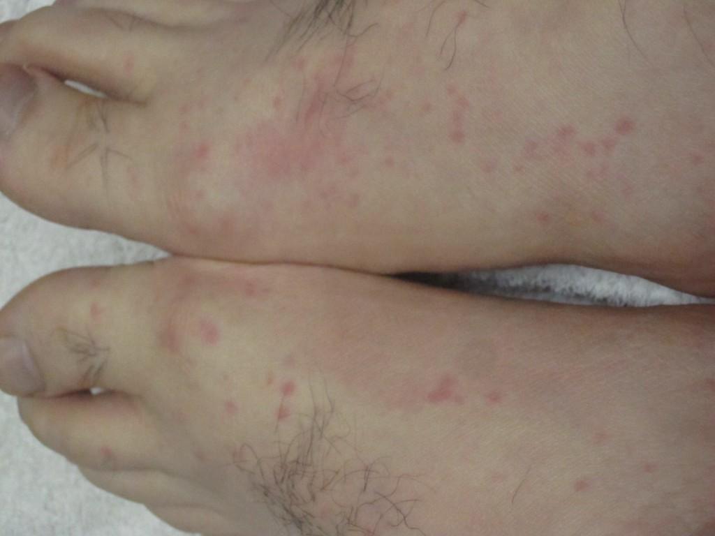 靴下による蒸れ・保温が蕁麻疹の原因なのか?