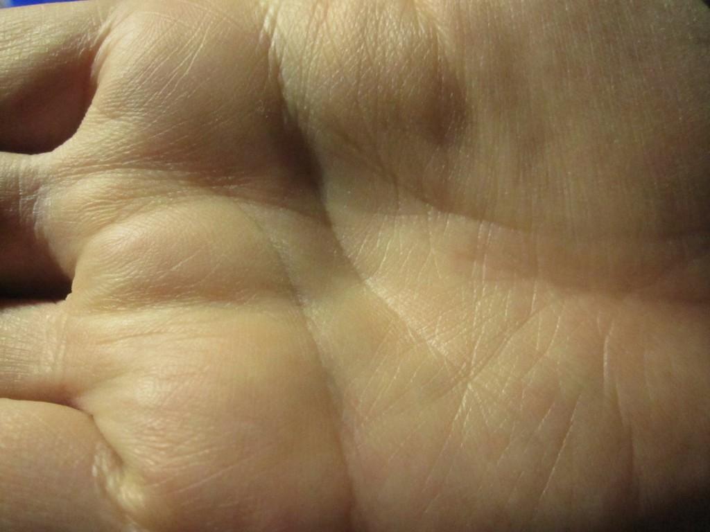 腕と違って蕁麻疹の症状が見られない手の平