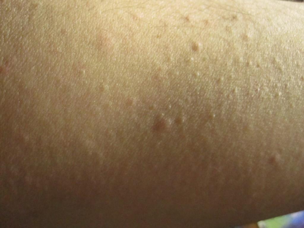 鳥肌という言葉がピッタリな二の腕のプツプツ蕁麻疹