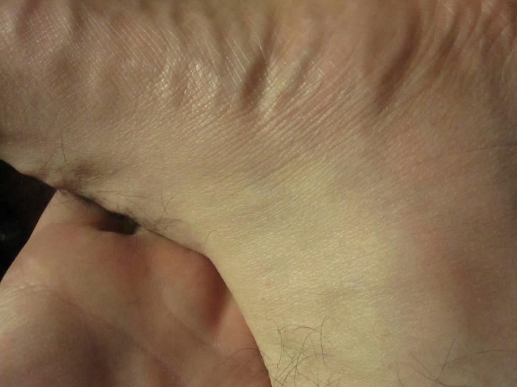 普段は赤いポツポツ蕁麻疹が出る足首の出ていない状態