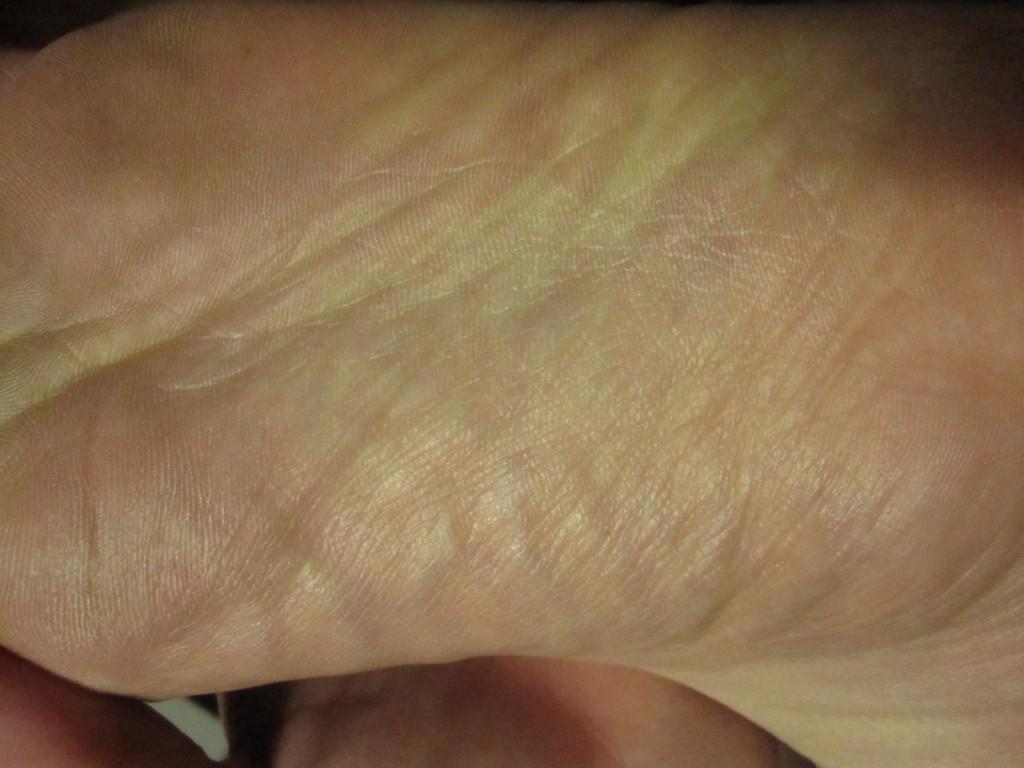 コリン性蕁麻疹が出ていない足の裏の状態