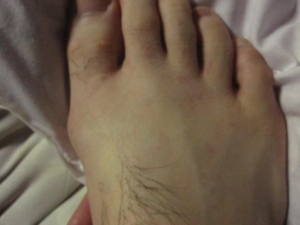 蕁麻疹の症状がほとんどない足の甲