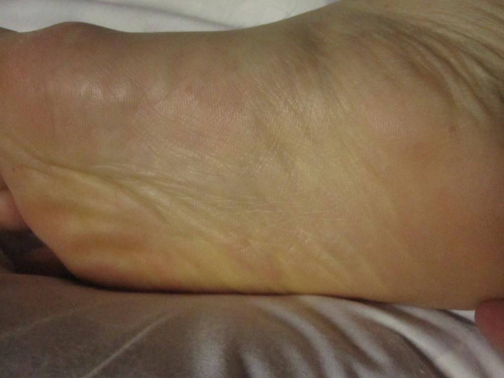 異変のないキレイな状態の足の裏