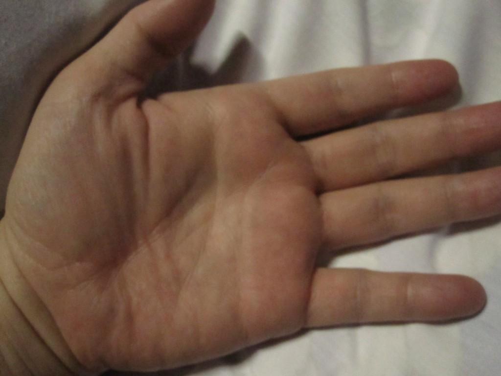異変のないキレイな状態の手の平