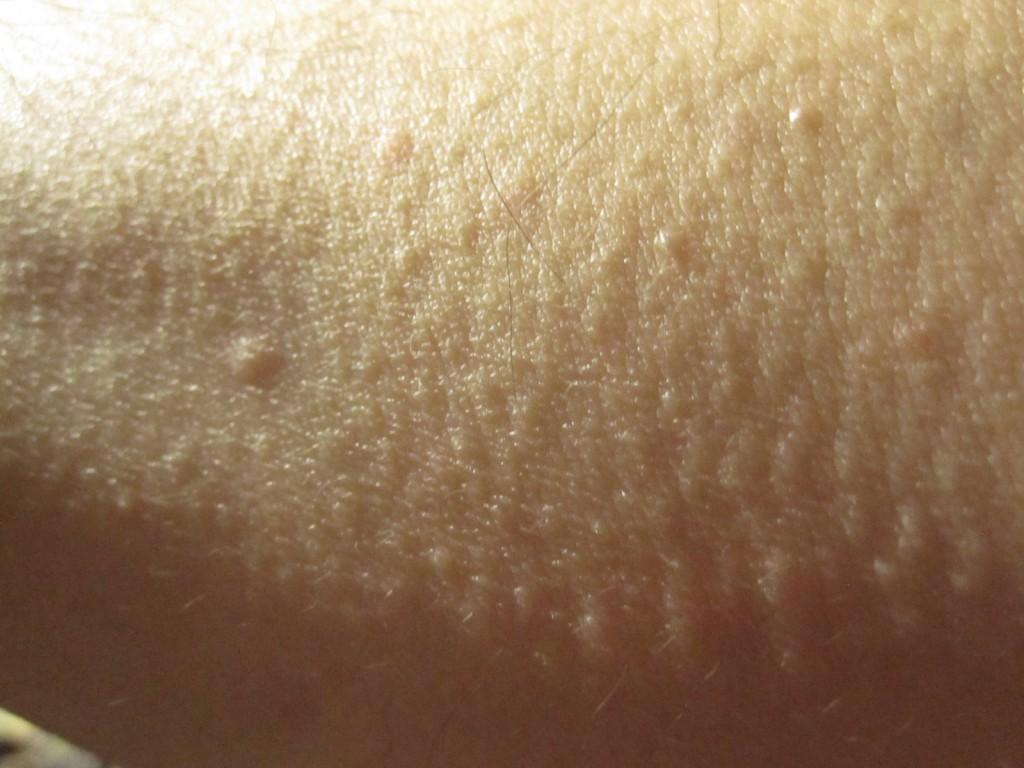 ブツブツと肌に鳥肌が立ち、一緒に膨疹じんましんも発生している腕