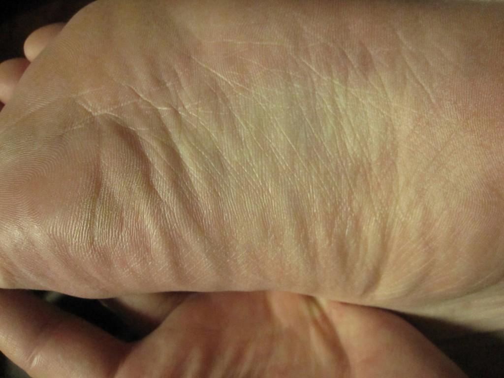 蕁麻疹が出ていないキレイな状態の足の裏