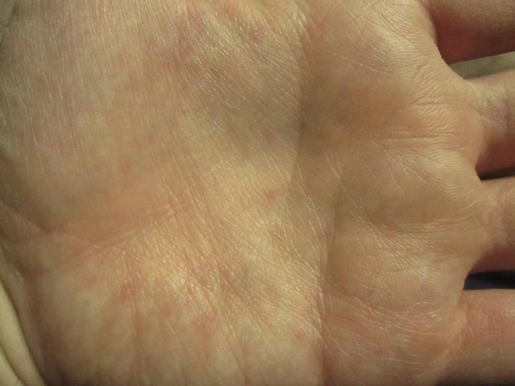 左の手の平には蕁麻疹が出ていない
