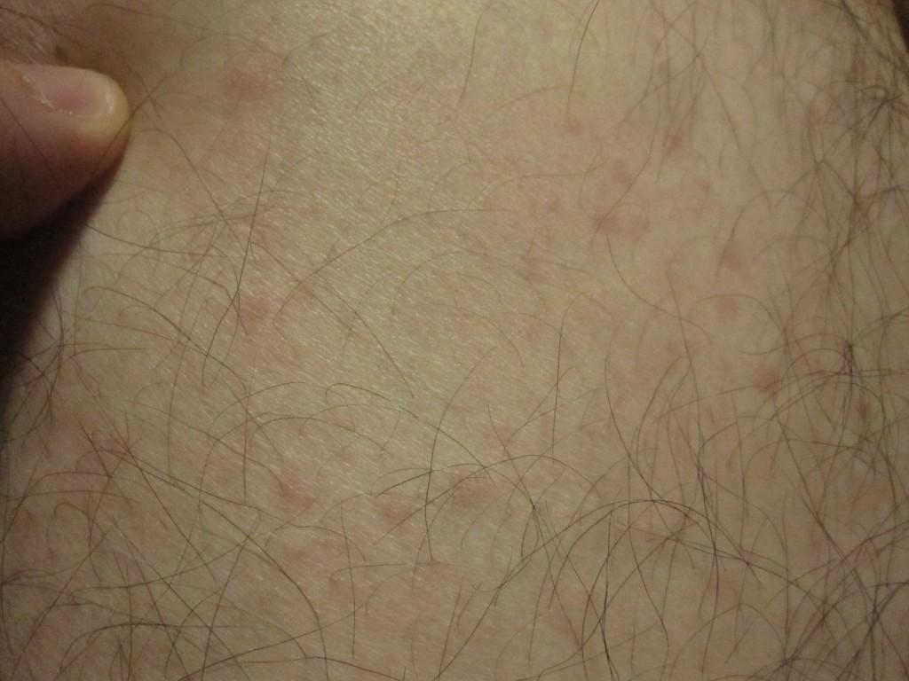 足首だけに蕁麻疹の症状が確認できる