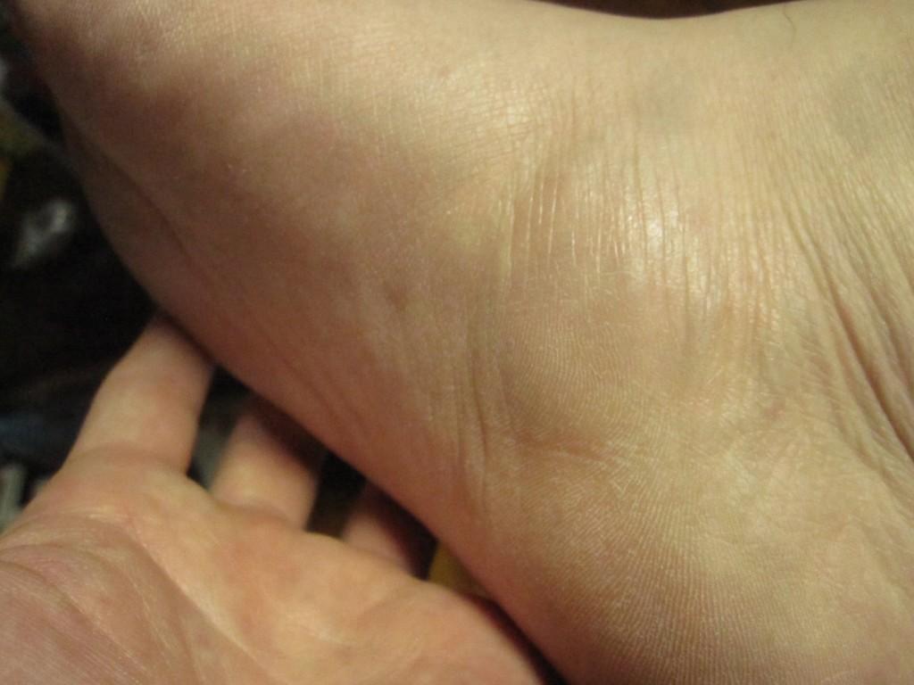 もう一方の足の裏、側面や甲にも蕁麻疹は出ていない