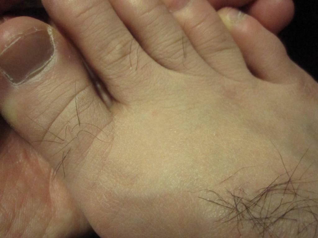 赤いコリン性蕁麻疹が出ていない足の甲の珍しい写真