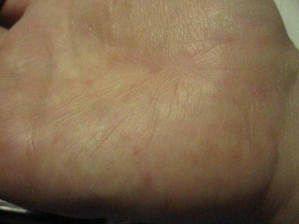 右手の平にはポツポツと蕁麻疹が確認できる