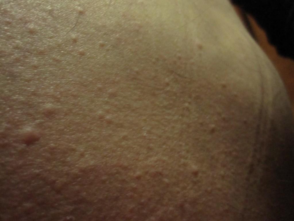 お尻に出てきた膨疹のコリン性蕁麻疹