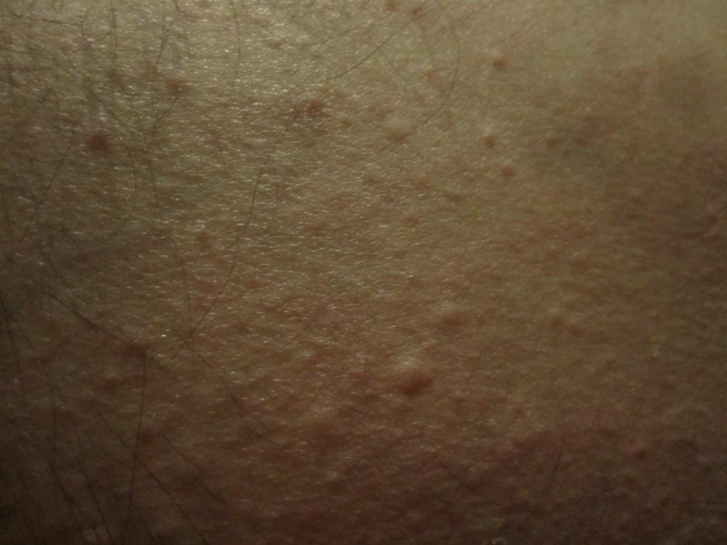 お尻のコリン性蕁麻疹をデジカメで接写撮影