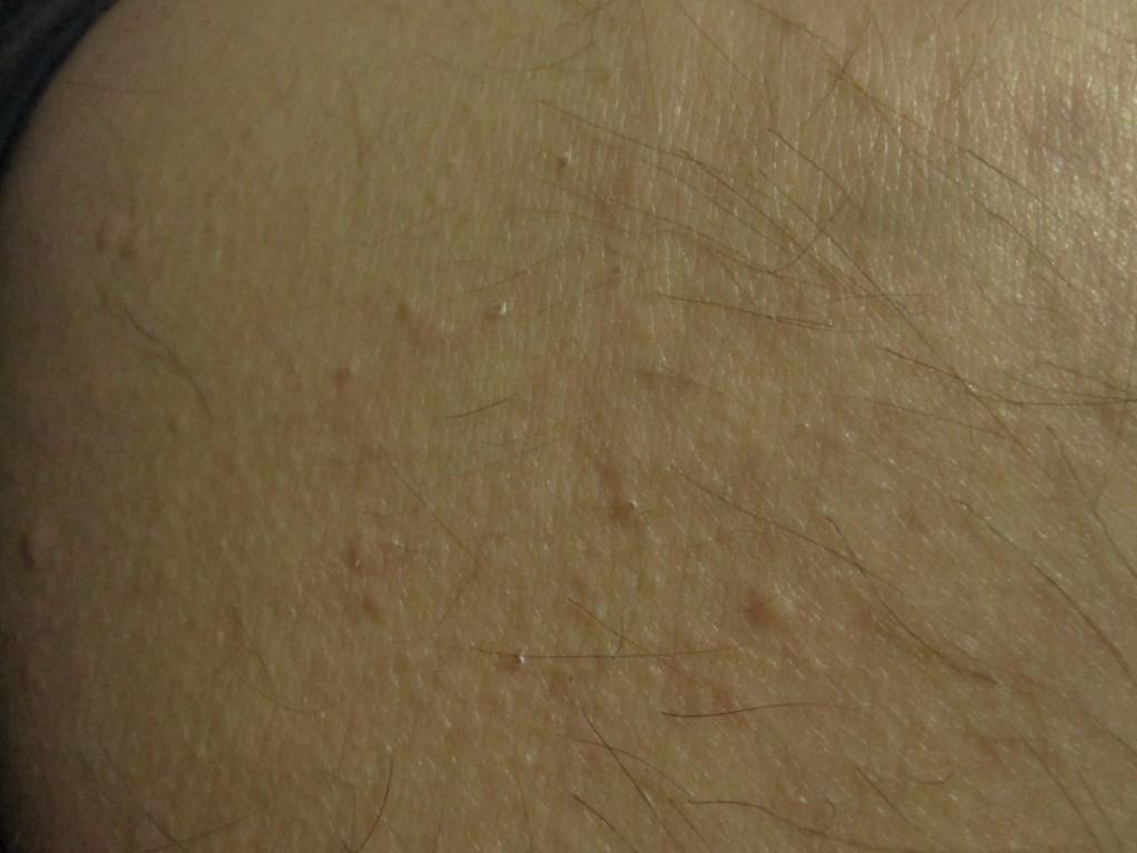 お尻の下部分にブツブツ蕁麻疹が出て痒い(TOT)