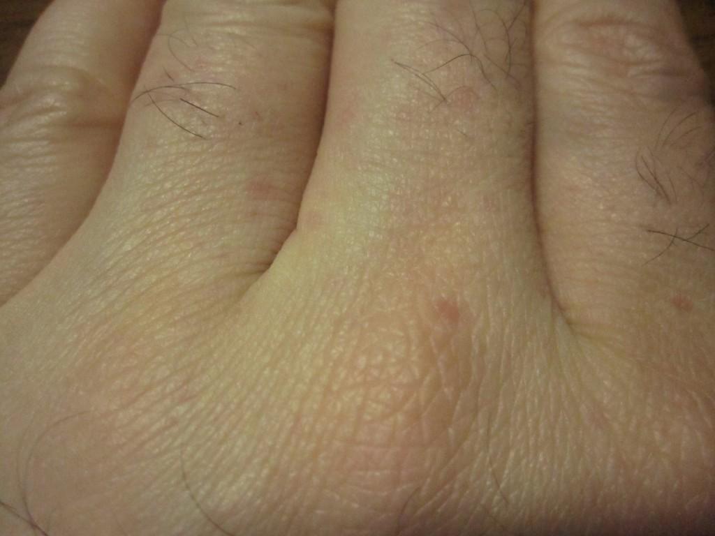 指の至る所にも出現するコリン性蕁麻疹