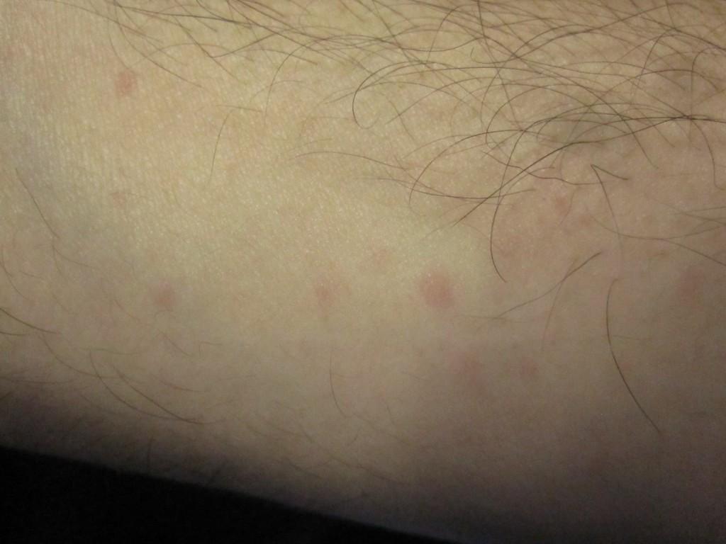 手の側面に出ている赤い蕁麻疹(じんましん)