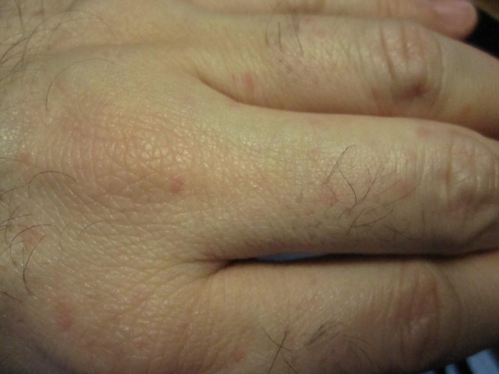 手の指に出ているコリン性蕁麻疹