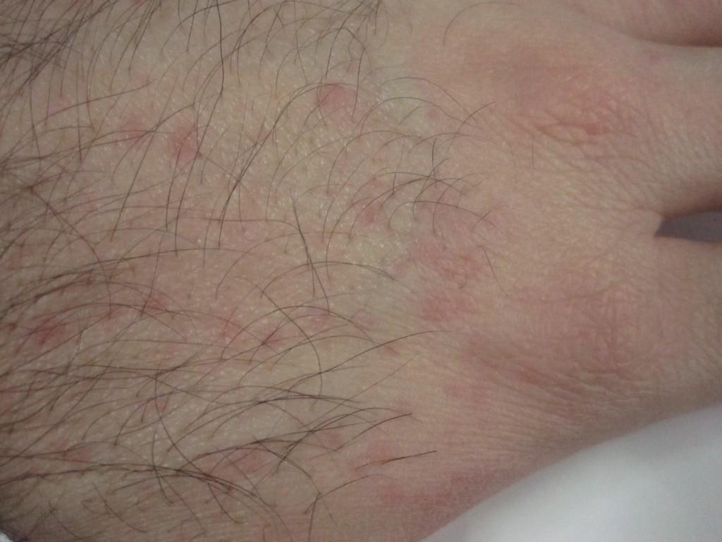 手に出てきた赤いぶつぶつ蕁麻疹