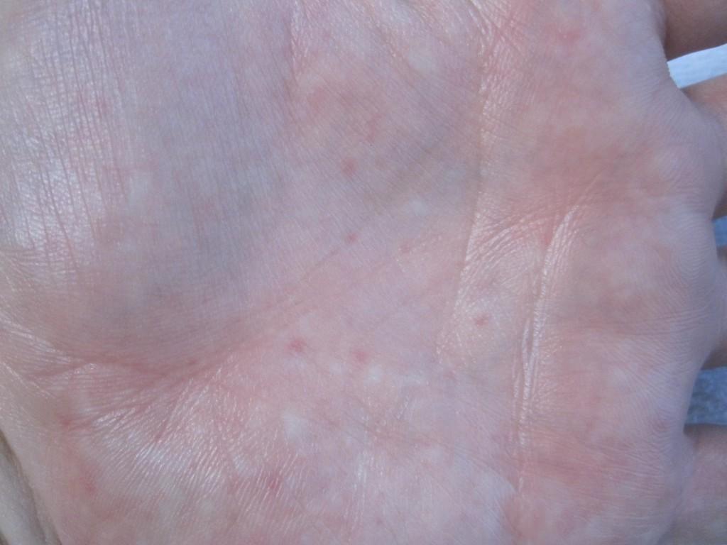 手の平に痒い蕁麻疹が出ている状態を撮影した写真・画像