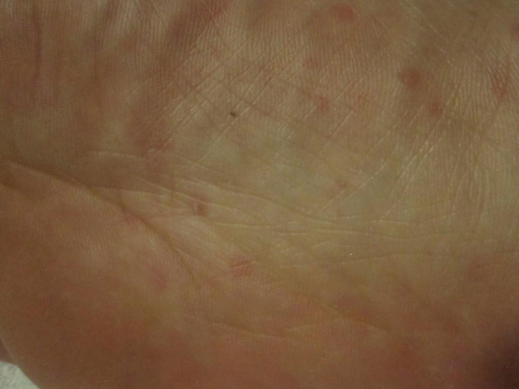 爪で掻いた直後の足の裏の赤い蕁麻疹