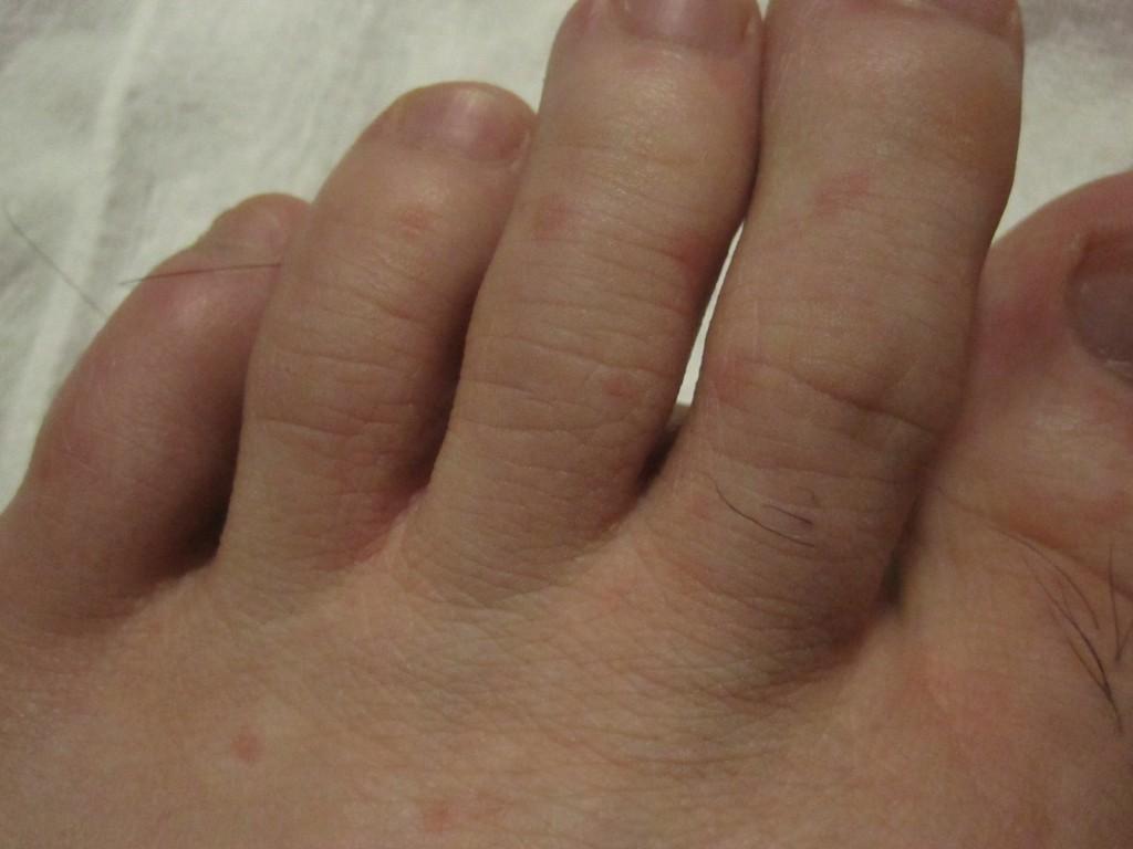 風呂あがりに足に出てきた赤い発疹の蕁麻疹