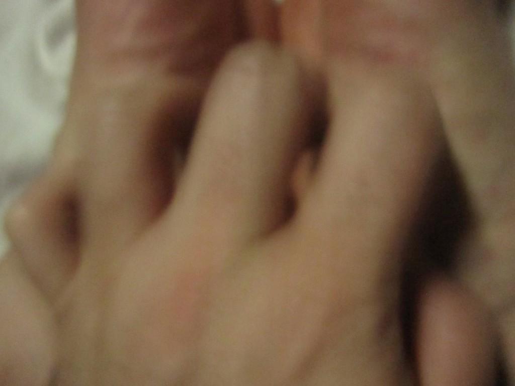 足の裏の痒いコリン性蕁麻疹を掻きむしる様子