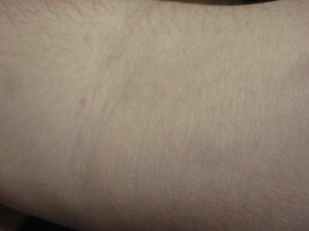 30分が経過した後の肌・皮膚は綺麗に蕁麻疹が消えている