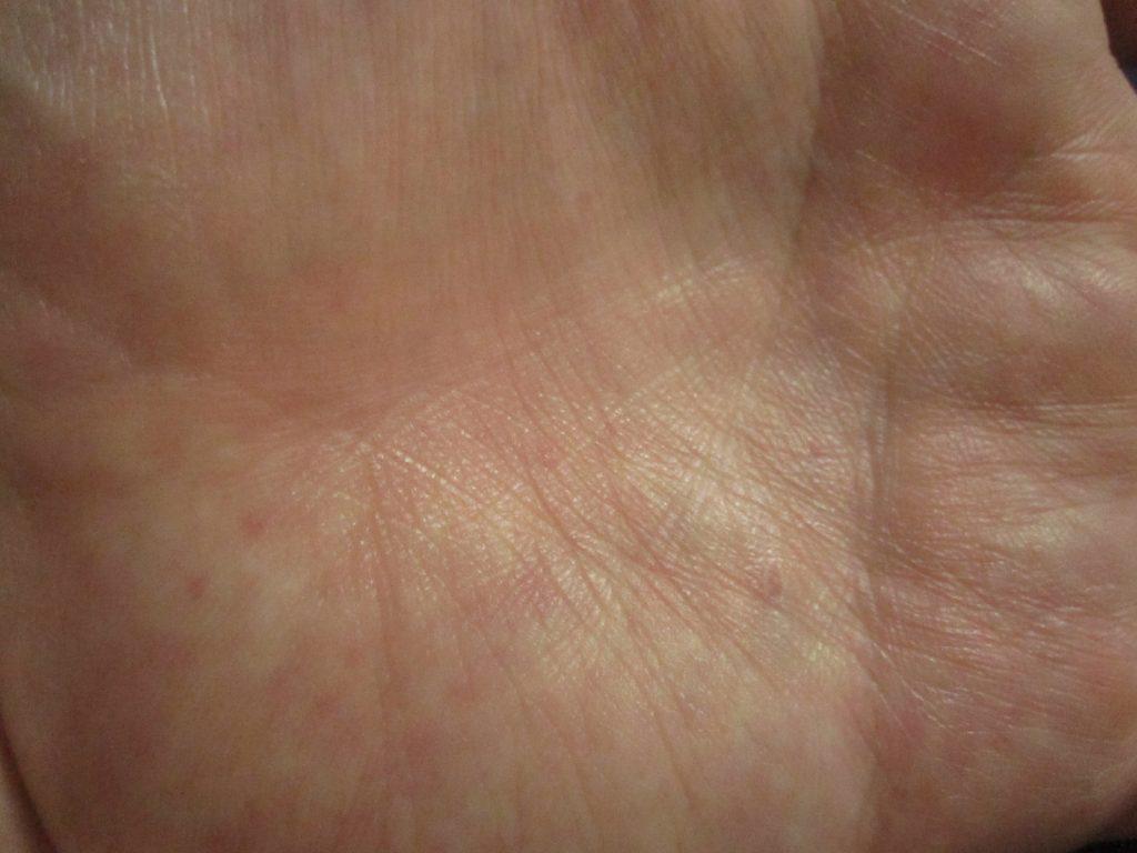 手の平に出てくる蕁麻疹は特に痒みが強い!