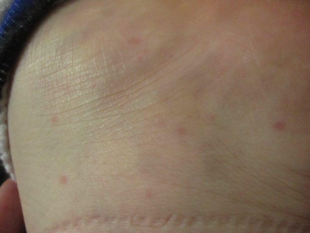 足の裏面・側面にも赤くポツポツとした蕁麻疹