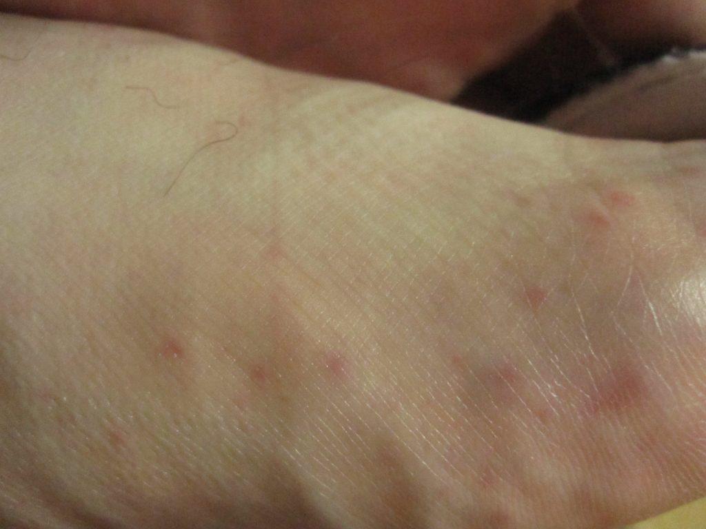 足の甲・指の付け根付近のコリン性蕁麻疹?