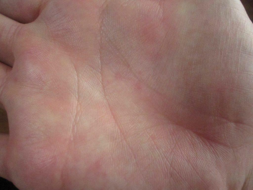 手の平の赤い蕁麻疹をデジタルカメラで接写撮影した画像