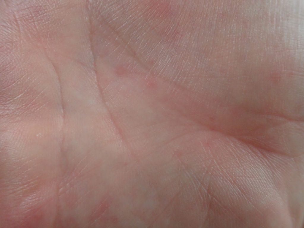 手の平に出た蕁麻疹は他の部位よりも痒みが強い