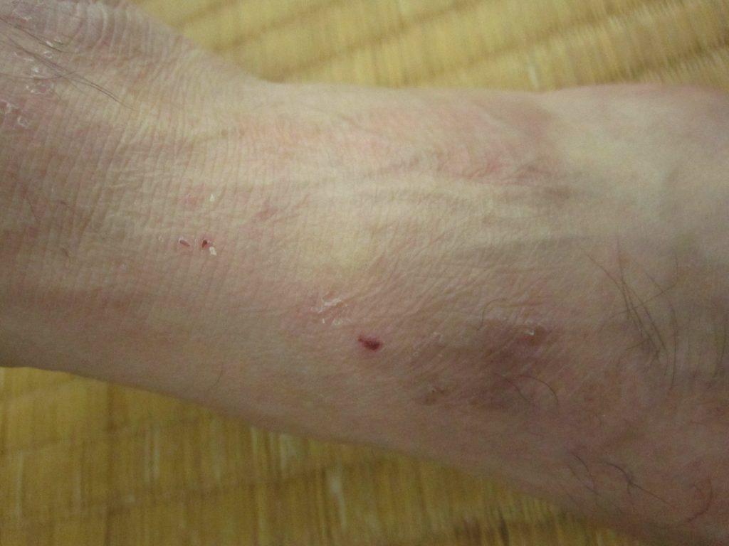 皮膚科で処方された飲み・塗り薬で皮膚の症状が改善した帯状疱疹