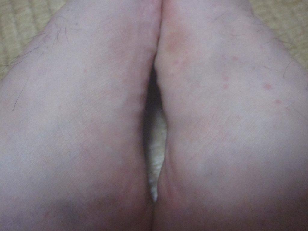 足の甲や指、足首にかけて赤くて痒いポツポツ膨疹が発生。コリン性蕁麻疹なのか!?