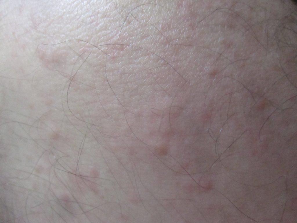 膝の周囲に蚊に刺された時のような膨疹じんましんが大発生!痒くてチクチク痛い!