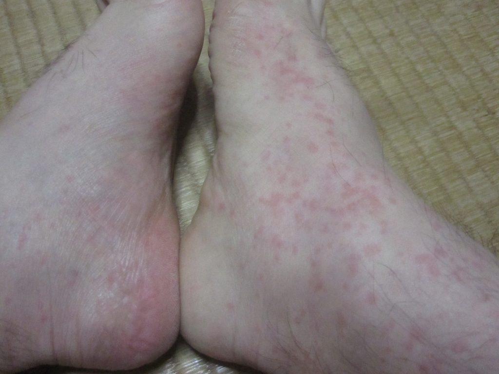 足首から甲にかけて大発生した赤いコリン性蕁麻疹?