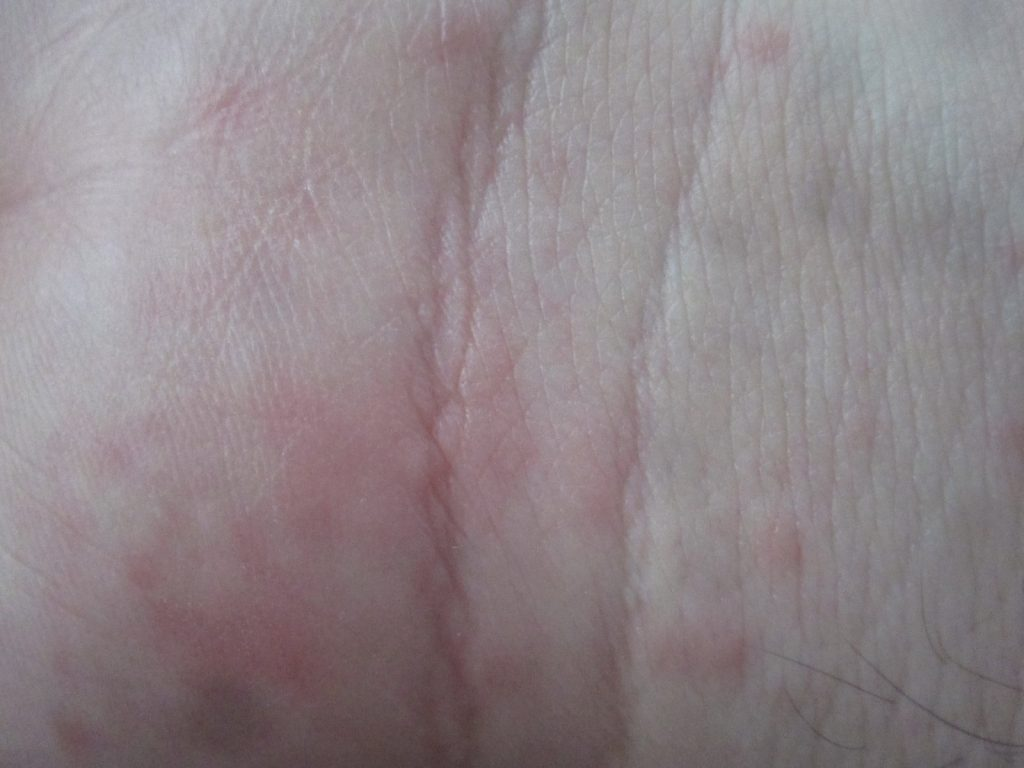 手の平に出るコリン性蕁麻疹が特に痒みが強い