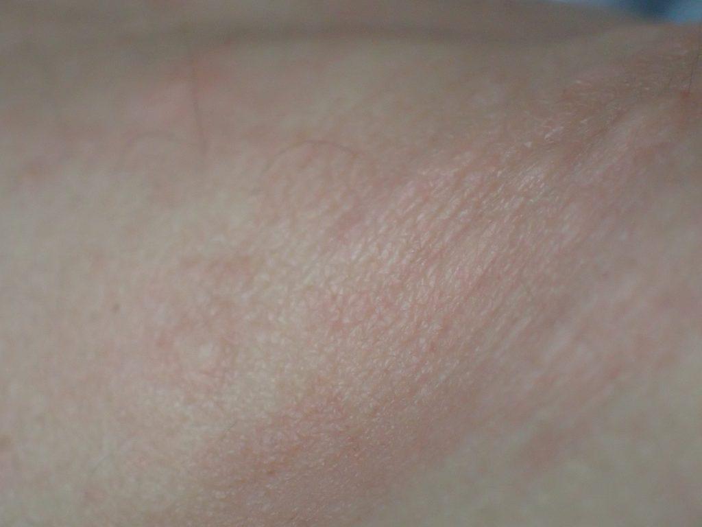 右腕のヒジ(肘)にボツボツした感触に気付いて写真を撮ってみた(画像)