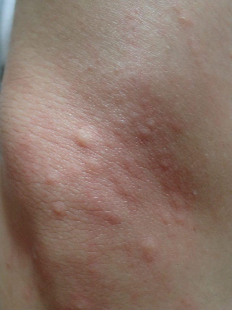 肘(ヒジ)を引っ掻いていたら大増殖したブツブツ蕁麻疹?虫刺され?の写真
