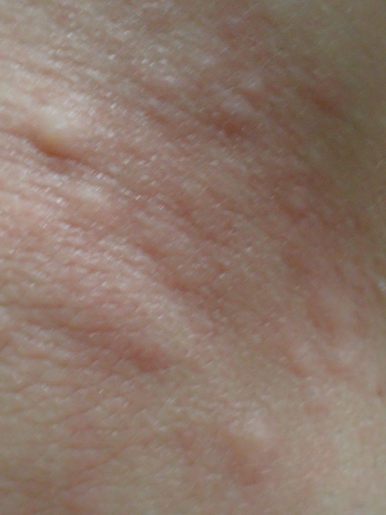 コリン性蕁麻疹とは違う感触と痒みをもったブツブツ凹凸