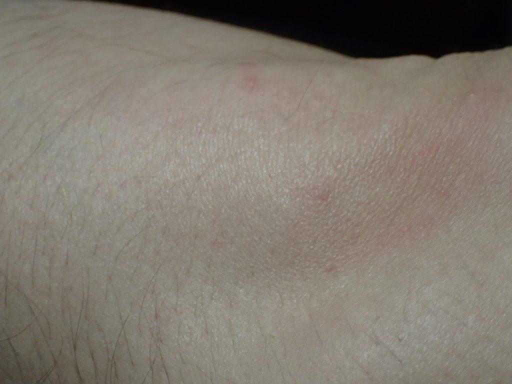 数時間後、痒かったブツブツが嘘のようにキレイに消えた肘(ヒジ)