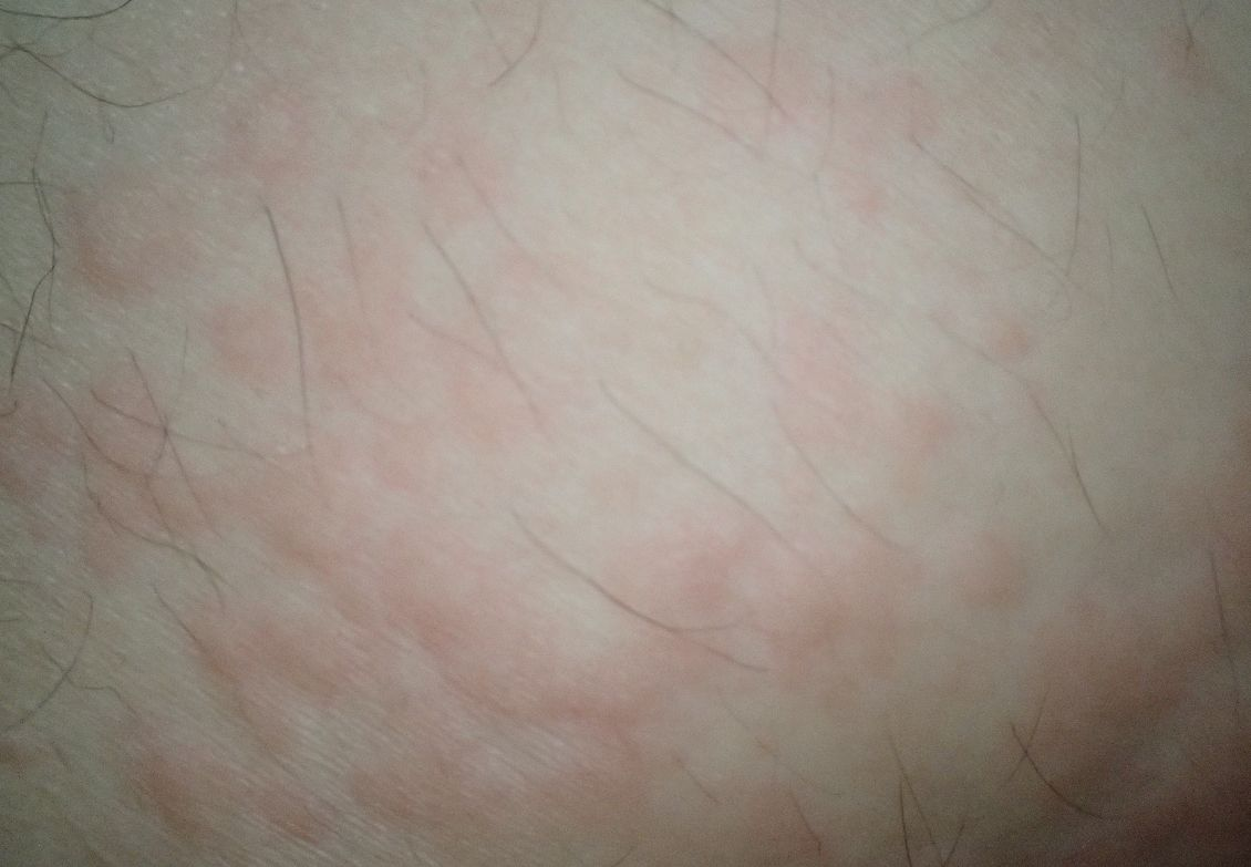 発疹・蕁麻疹の状態が悪化すると一つ一つが合体して巨大化する