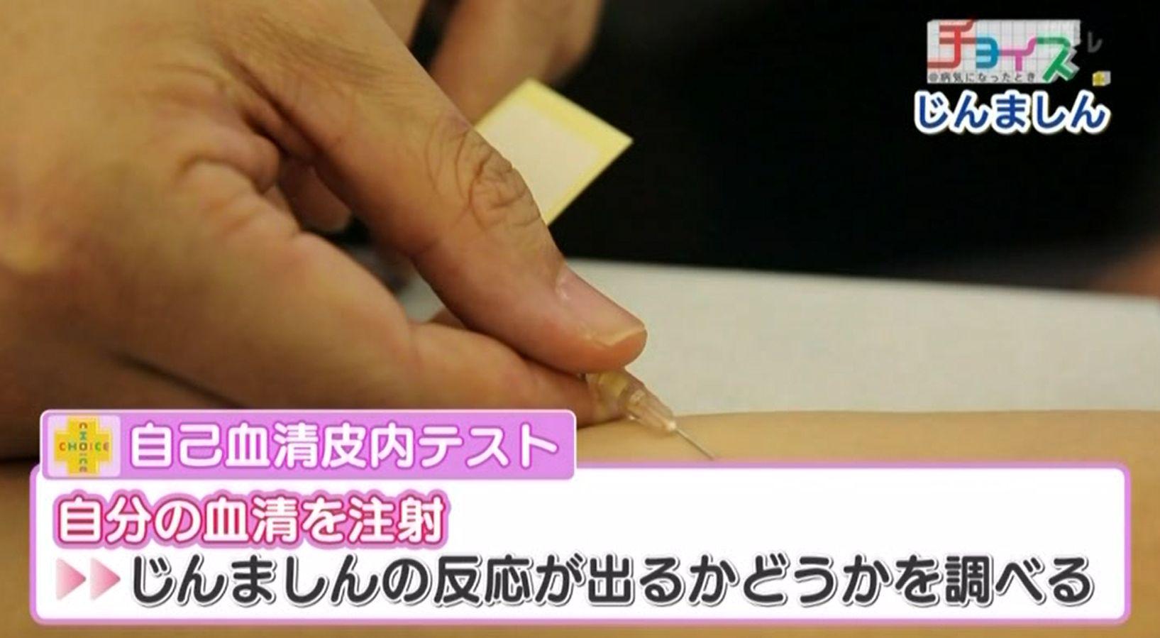 自己血清皮内テストとは、自分の血清を注射して、じんましんの反応が出るかどうかを確かめるテストのこと
