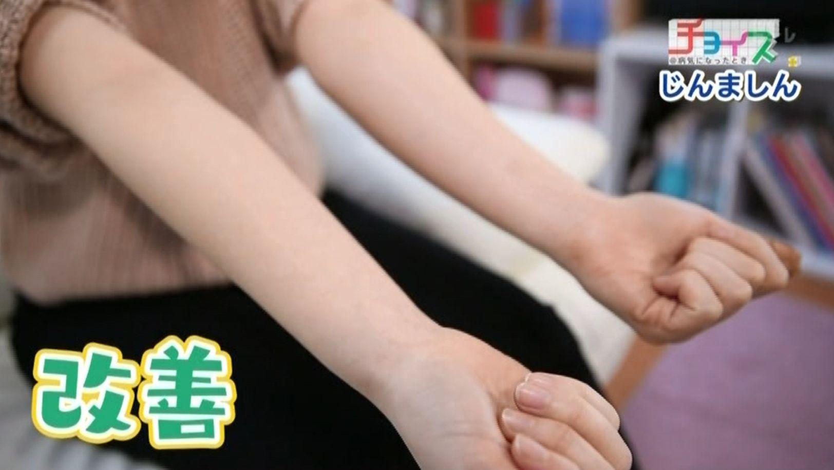 症状が劇的に改善した杉山さんの腕の写真