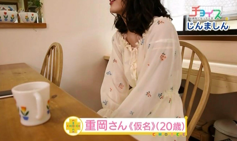 じんましんに悩まされている重岡さん<仮名>(20歳)